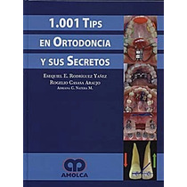 1001 Tips En Ortodoncia Y Sus Secretos Implantes Odontología