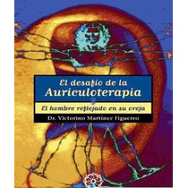 El Desafío De La Auriculoterapia Balines - Libro