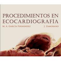 Procedimientos En Ecocardiografía Pdf