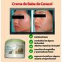 Crema Baba De Caracol Anti-estrias Acne 500g C/u