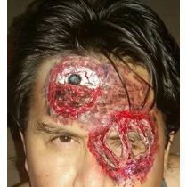Heridas Y Protesis En Latex
