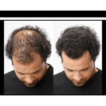 300grs Noxhair Fibras Capilares Cubre Calvicie Alopecia