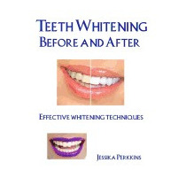 Teeth Whitening Before And After:, Jessika Perkkins